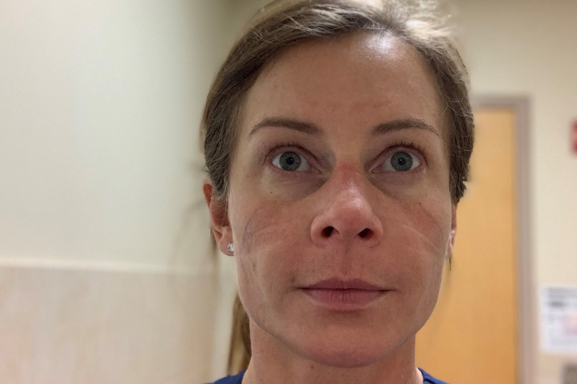 Jennifer Simpson Weier shows the marks on her face left from wearing the N-95 mask while helping COVID-19 patients